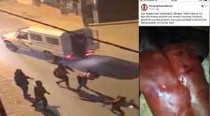 VIOLENCES POLICIERES POUR FAIRE RESPECTER LE COUVRE-FEU : Les organisations de défense des droits de l'homme disent non et invitent Aly Ngouille Ndiaye à parler à ses hommes