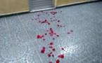 Un homme ivre mort se cogne mortellement la tête contre un mur dans sa chute de l'escalier à Golf Sud