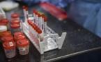 COVID-19 Six infections sur sept ne sont pas détectées en Afrique